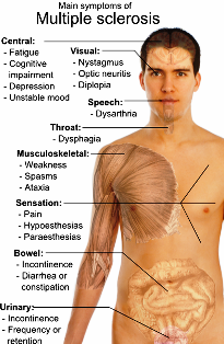Main symptoms of Multiple sclerosis. (Credit: Mikael Häggström)