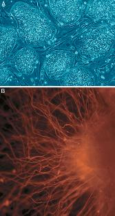 Embryonic Stem Cells. (A) shows hESCs. (B) shows neurons derived from hESCs. (Follow the Money – The Politics of Embryonic Stem Cell Research. Russo E, PLoS Biology Vol. 3/7/2005)